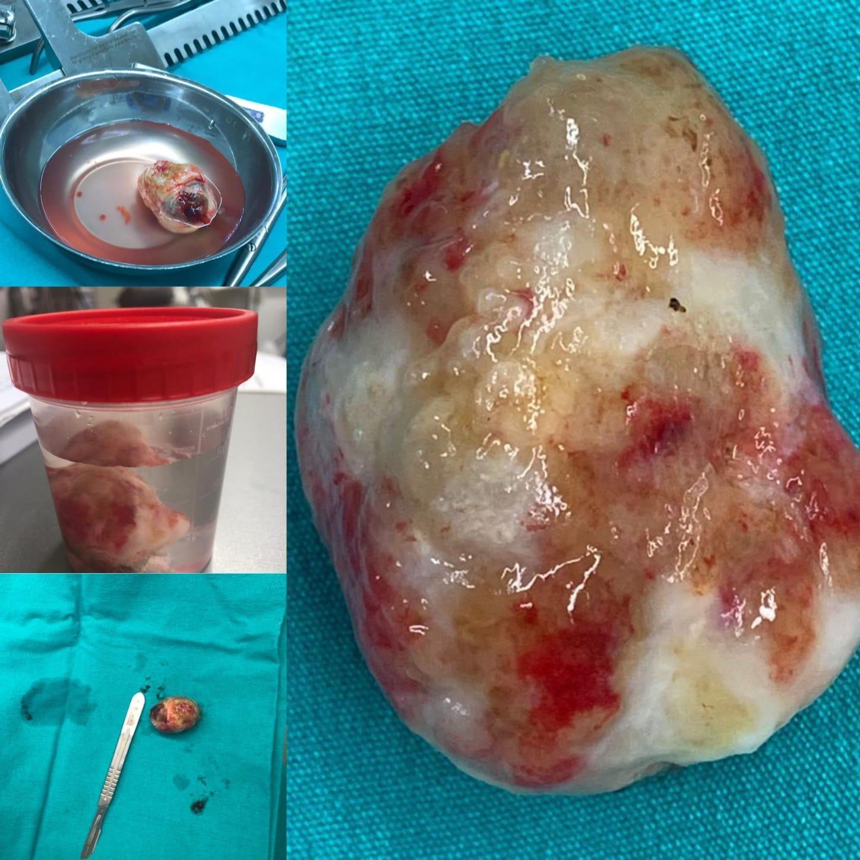جراحة-القلب-بأقل-تدخل-جراحي-محدود-1