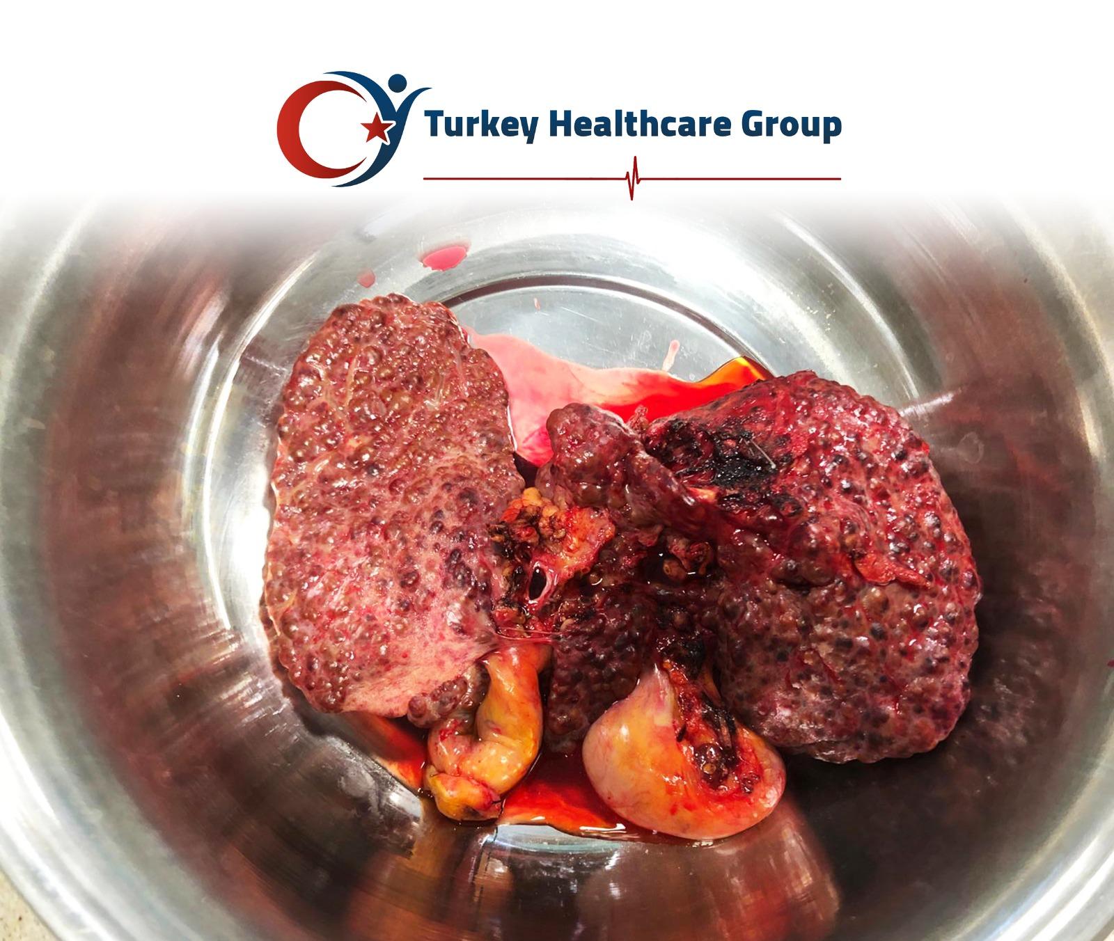 زراعة-الكبد-في-تركيا-1