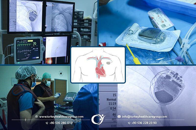 عملية تركيب جهاز بطارية القلب زراعة جهاز تنظيم ضربات القلب في تركيا